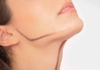 Liposuccion du double menton ou liposuccion du cou